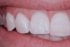 Cosmetic Dental Gum Surgery After