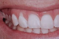 Cosmetic Dental Gum Surgery Before